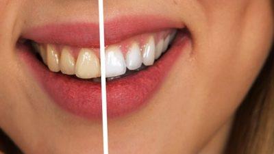 wybielanie zębów Zielona Góra